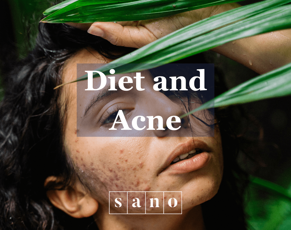 Diet and acne